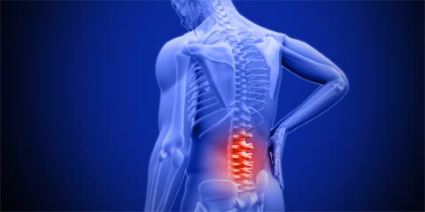A slipped disc can cause severe and intense back pain